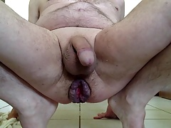 Prolapse Anal Play