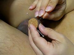 Foreskin needle 16